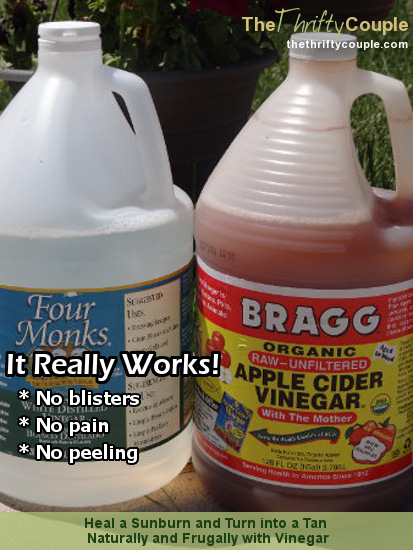 Using vinegar to heal a sunburn